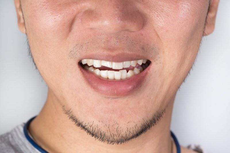 Traumi dentali, quali sono e come intervenire